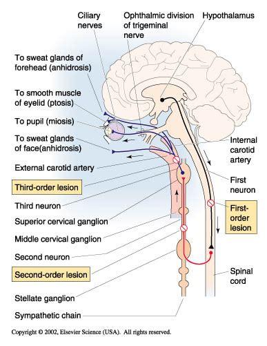 Inner carotid artery