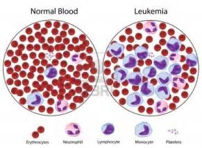 Leukemia. Causes, symptoms, treatment Leukemia Leukemia
