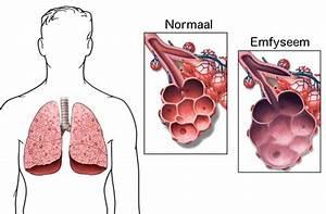 Allergietest en allergiebehandeling via alternatieve geneeswijzen