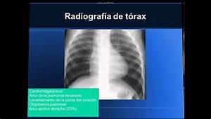Cardiopatias Congenitas Tetralogia De Fallot