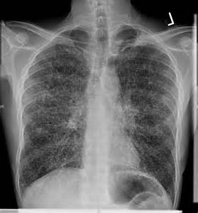 Dyspnea, Fever, and Weakness Following a House Cleaning: Analyze This ...  Disseminated tuberculosis Chest Pain