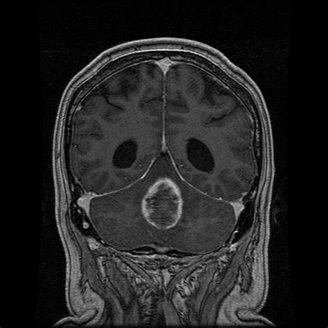ependymoma conditions neurooncology specialties ur