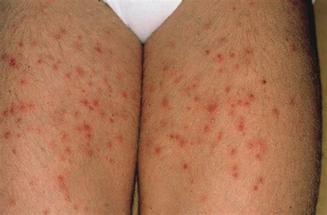 Folliculitis Acute Bacterial Bockharts Impetigo