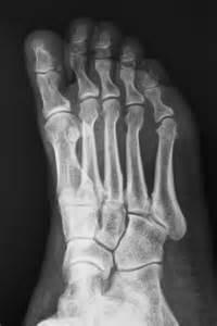 Broken Big Toe Bone in Foot X-ray