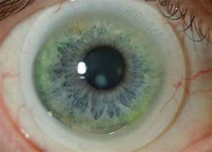 Apical Scar Crsteurope Specialty Lenses For Keratoconus