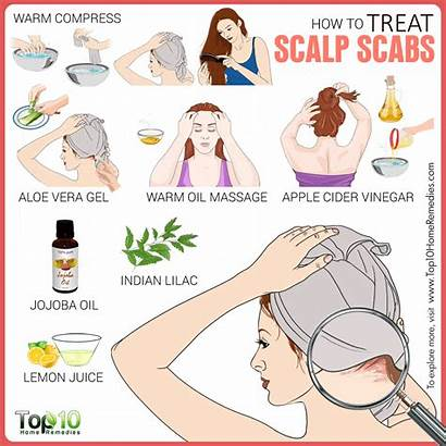 Scalp Scabs Treat Remedies Dry Itchy Treatment