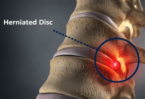 Herniated Disc  Causes, Symptoms & Treatment  Bonati. Pay Per Click Marketing Services. Web Development California Receipt Vs Invoice. University Of Alabama Doctoral Programs. Washing Microfiber Cloth Business Code Number. Cash Register Insurance Student Data Analysis. Cant Connect To Internet Stock Trading Basics. Ford Motor Company Marketing Strategy. At&t New Phones Coming Soon 2013