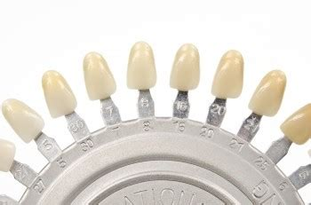 sunrise family dentistry veneers lumineers cosmetic