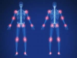 Ankylosing Spondylitis Chart Migratory Arthritis Overview And Associated Conditions