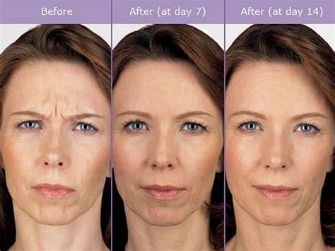 Anti-Wrinkle Injections from £169 in Nottingham & London