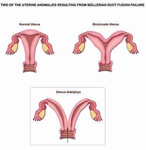 Uterus Didelphys