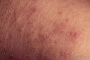 what are the different causes of a tanning bed rash
