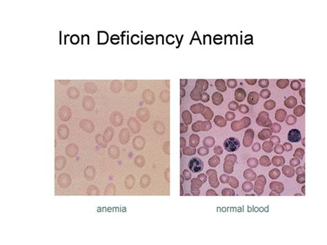 Anemia-related Medical Terminology