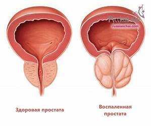 Лекарства для хронического простатита