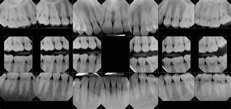 dental radiography services  washington panoramic