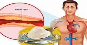 Лекарства от холестерина печенью