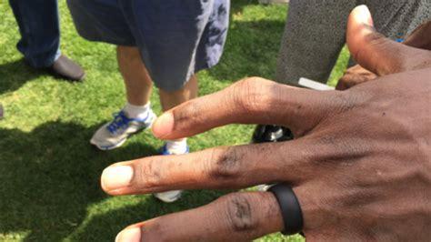 sammie coates broken finger  healed   doesnt