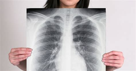 scarring   lungs livestrongcom