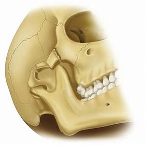 16: Fractures of the Zygomatic Complex and Arch | Pocket ...