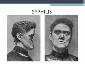 Congenital syphilis as related to Penicillins - Pictures
