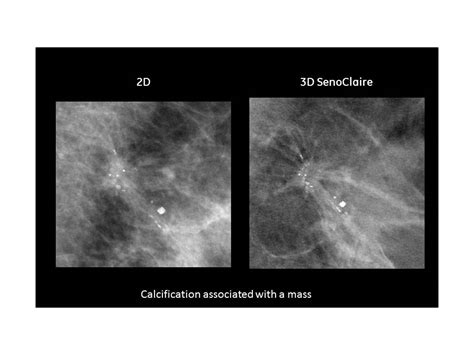 Pain caused by capsular contracture is often considered justification for insurance coverage of. FDA Clears GE Healthcare's SenoClaire 3-D Tomosynthesis Mammography System | Imaging Technology News