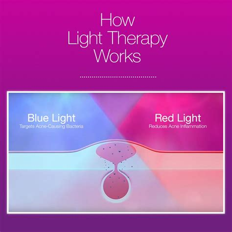 does light therapy work how does light therapy work neutrogena light