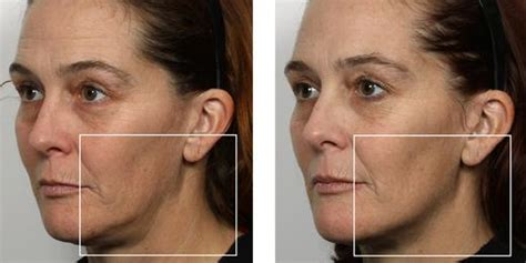 NuFACE Microcurrent Facial Toning Devices & Skincare