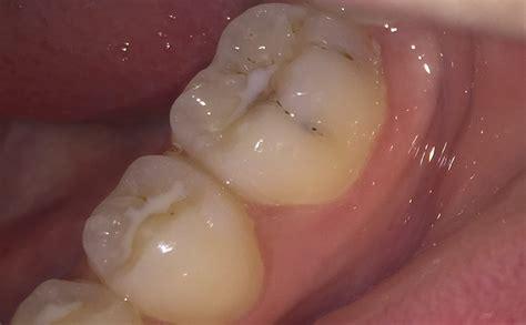 ist dieser zahn mit karies befallen zaehne