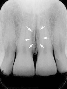 Dental Hygiene 230.a > Giblin > Flashcards > Quiz 4 ...
