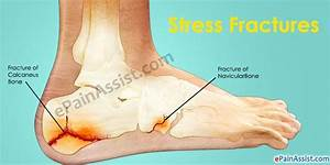 Lateral Foot Pain Or Pain On The Outer Side Of The Foot