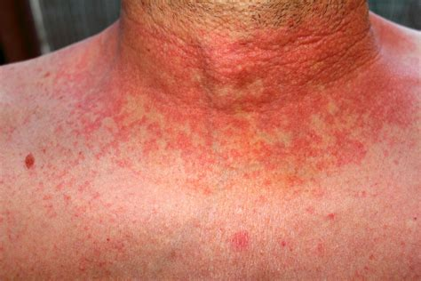 What Is Scarlet Fever Symptoms Rash How It Spreads And
