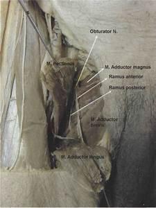 Obturator Nerve Block. | Anesthesia Key