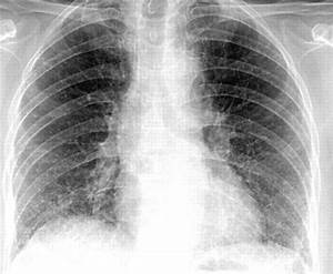 How To Read A Chest Xray Ii   Pneumonia