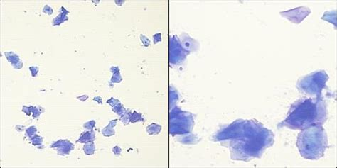 canine vaginal cytology case
