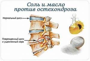 Деформирующий артроз коленных суставов лечение в москве