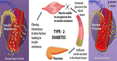 naturally reverse type  diabetes  naturally healthy