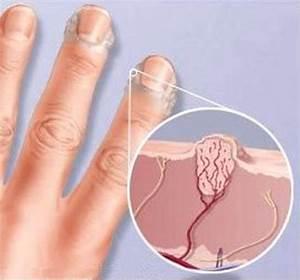 Бородавки на пальцах ног лечение и фото