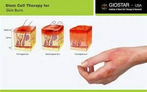 Skin Burn Treatment