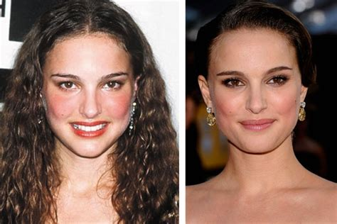 Natalie Portman Plastic Surgery Has She Had Nose Job