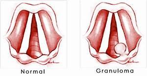 Vocal Granuloma