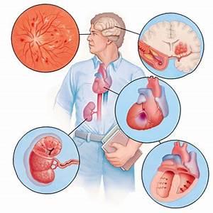 Препараты от артериальной гипертензии при мерцательной аритмии