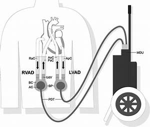 Fatal Disconnection Of A Ventricular Assist Device In An Out