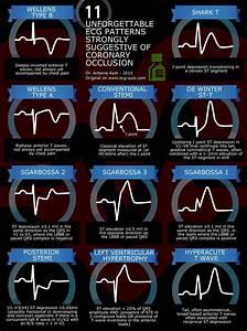 56 Best Cardiac Arrhythmias Images On Pinterest