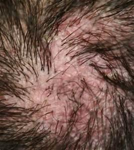 Psoriasis perte cheveux