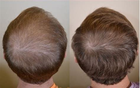 Propecia before and after photos - Dr Rogers - New Orleans