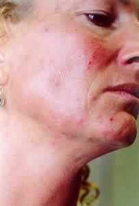 Demodex treatment