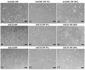 Morphological Changes Of Smcs And Adipose Tissue