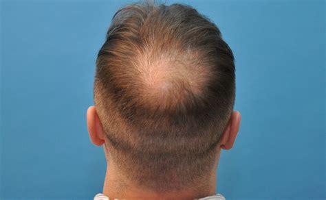 Vertex Hair Loss Treatment