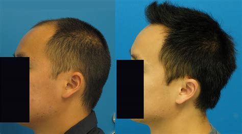 Propecia Shedding After 1 Year by Dr Hasson 3131 Grafts One Year Fut Forum By And For