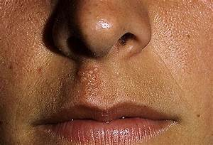 Cold Sore Pictures: Causes, Treatments, Home Remedies, and ...